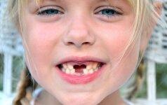 Ką daryti, jei vaikui išlūžo ar buvo išmuštas dantukas? Odontologės komentaras