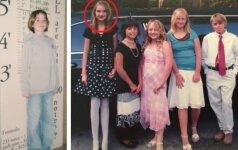 Mergaitę kairėje pravardžiuodavo žirafa. Praėjo 8 metai ir...