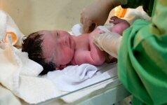 Nauja gimdymo mada vienus džiugina, kitus šiurpina