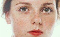 5 efektyvūs būdai, kaip kovoti su odos raudoniu