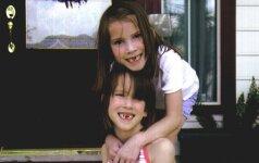 Išskirtinė istorija: Siamo dvynės švenčia gimtadienį ir lanko jas atskyrusį gydytoją FOTO
