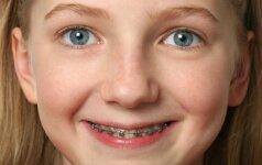 Ortodontas: kada vaikui tikrai reikalingi breketai?