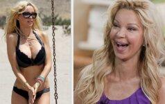 Kaip atrodo moteris po 71 plastinės operacijos