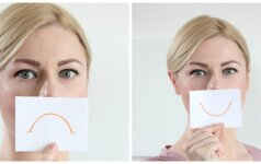 Norite lygaus veido? Liaukitės kontroliuoti emocijas!