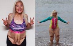 Moteris atsikratė daugiau nei 130 kg, bet užgauliojimų sulaukia daugiau nei anksčiau