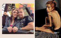 Sukrečianti istorija: anoreksija serganti moteris sveria mažiau nei 20 kilogramų