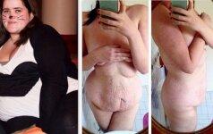 Mergina nepabijojo parodyti, kaip realybėje atrodo kūnas, numetus 65 kilogramus