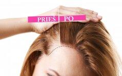 slenka plaukai