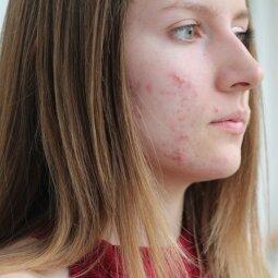 Kaip tavo odoje susiformuoja aknė