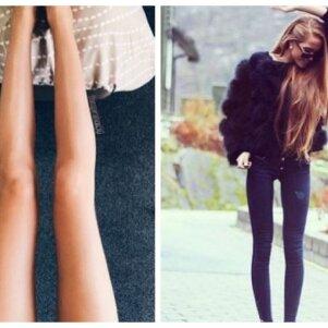 """Lieknumu besididžiuojančios merginos veda kraupią """"Instagram"""" madą (FOTO)"""