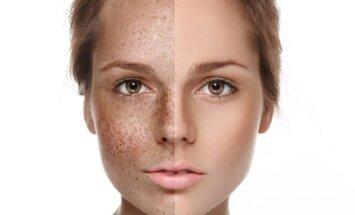 Saulės bučinius ir nepageidaujamus odos darinius pašalins vos kelios procedūros