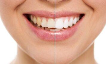 """3 būtini žingsniai norintiems <span style=""""color: #c00000;"""">sveikų dantų</span>"""