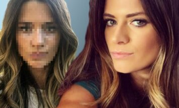 Daugybę metų dėl savo veido kompleksavusi mergina išdrįso parodyti, kaip atrodo be makiažo