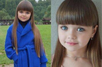 Gražiausia pasaulyje pavadinta mergaitė sulaukė milžiniško dėmesio: prabilo jos mama