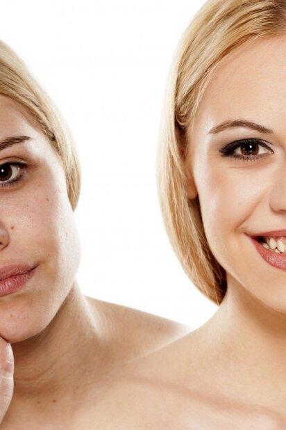Kankina spuogai? Atrastas didžiulis spuoguotos odos privalumas (APKLAUSA)