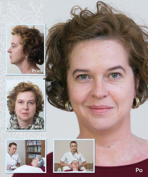 Mažais žingsniukais – tobulos odos link: Vilmos istorija
