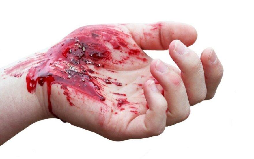 Dwie Polki zaatakowane nożem. Jedna z nich walczy o życie w szpitalu!