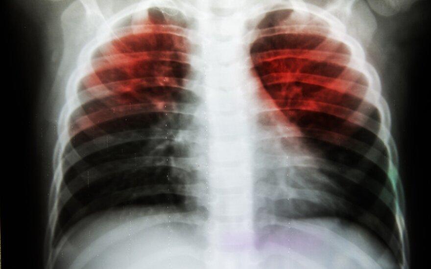 Tuberkuliozės pažeisti plaučiai