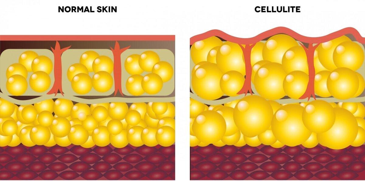 kurios riebalų ląstelės dega pirmiausia