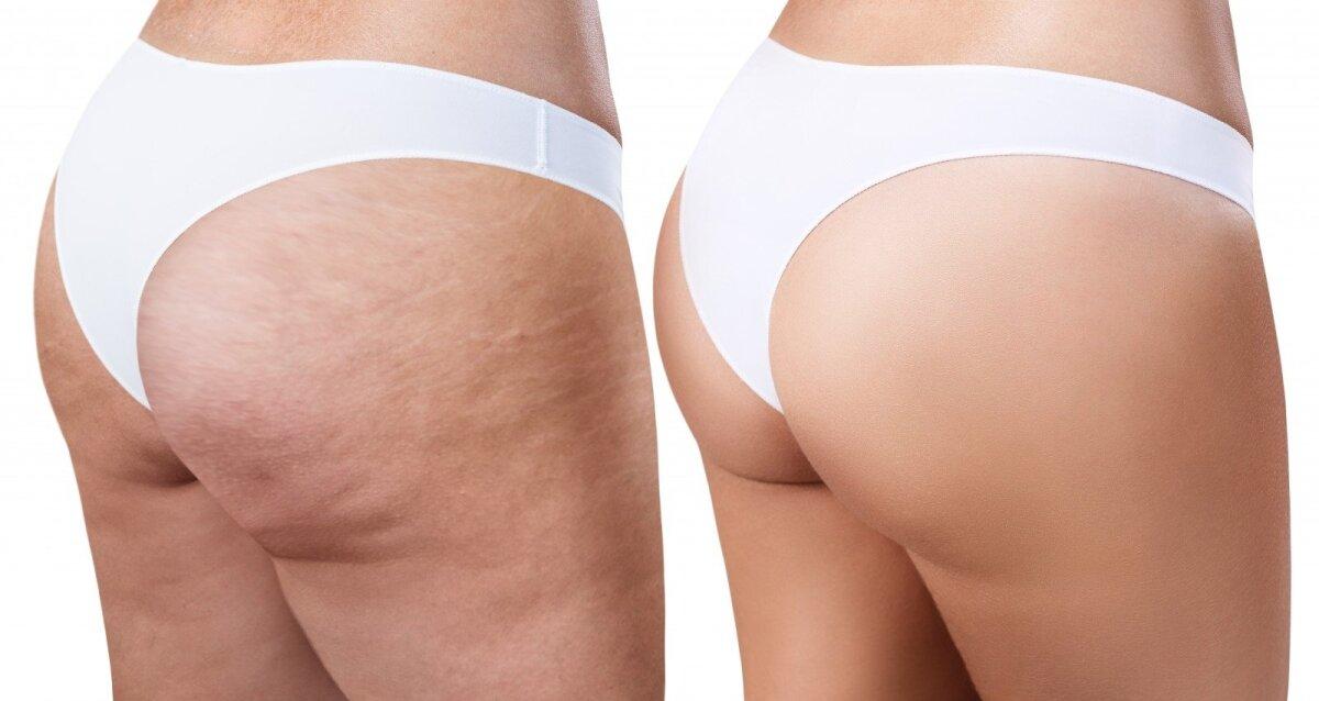 Yra natūralus svorio netekimo rinkinys - DAESES STANGRINAMASIS KŪNO PIENELIS, ml - Medexy