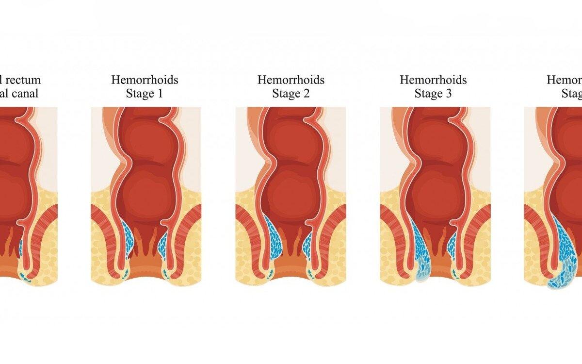Hemorojus nėštumo metu. Kokius vaistus galima vartoti?