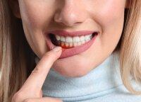 Kraujuojančios dantenos gali virsti klastinga liga: skausmo nejaučia metų metus, o pasekmės – liūdnos