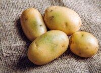 Pagrindinė klaida ruošiant bulves: gydytojos įvardijo, kad taip galima stipriai nutukti