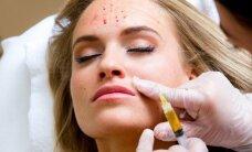 Per savo gimtadienį G. Gurevičiūtė išbandė K. Kardashian pamėgtą skausmingą grožio procedūrą