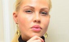 """Rusijos futbolininko žmona susimažino lūpas: """"Ačiū Dievui, atsikračiau šito košmaro"""""""