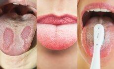Šeimos gydytojas: kaip turi atrodyti sveiko žmogaus liežuvis ir kaip juo taisyklingai rūpintis