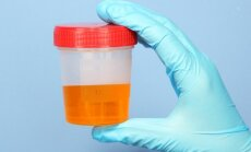 šlapimas, tyrimas, liga, ligoninė, šlapimo tyrimas, infekcija, peršalimas