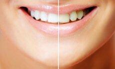 Savo dantų baltumą patikėsite natūralioms ar cheminėms priemonėms?