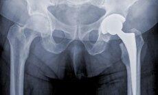 Klubo sąnario protezas