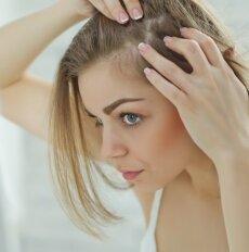 Po gimdymo siaubingai slenka plaukai: ką daryti?
