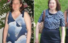 Vilnietė per pusmetį atsikratė 22 kg antsvorio, atsiradusio dėl kontraceptinių tablečių