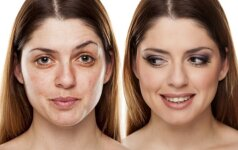Kaip nuo veido nubraukti mažiausiai 10 metų: auksinės kaukės receptas