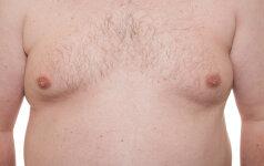 Kaip išgydyti vyriškas krūtis