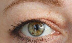 Gydytoja įspėja: net nesuprasite, kad jaučiamas skausmas kankina dėl užkritusių akių vokų