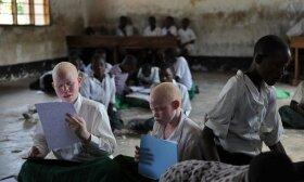 Mėnulio vaikų žemė: izoliuota albinosų tauta vadinta necivilizuotais kanibalais, o vėliau pradėta medžioti