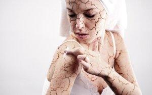 Kaip prižiūrėti sausą odą, kad išvengtumėte bjaurios ligos. Laimėtojai