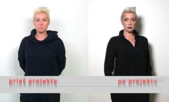 """Grožio specialistams vėl atsidavusi iširusios grupės """"Junior"""" vokalistė R. Paulauskaitė: nežadu senti oriai"""