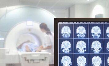 Smegenų skenavimas