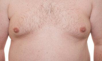 Vyriškos krūtys