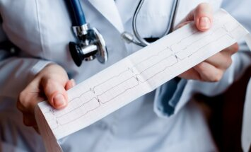 Kardiograma
