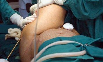 Riebalų nusiurbimas, liposakcija, plastinė chirurgija, plastinė operacija