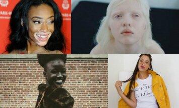 Moterys, kurios savo unikalumu pelnė pripažinimą