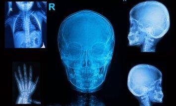 Rado būdą, kaip transformuoti kaulus: tikisi padėti sergantiems