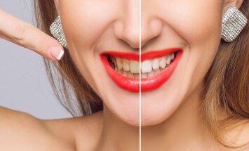 14 mitų apie dantų priežiūrą, kuriais tiki daugelis