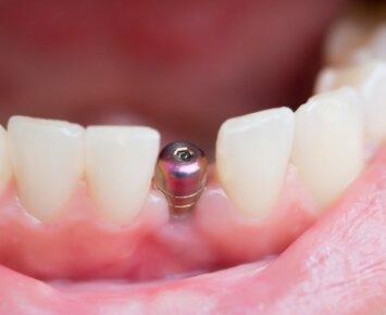 Dantų implantai – trumpalaikis džiaugsmas ar ilgametė investicija?