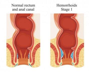 Pirmos stadijos hemorojus: ar galima jį išgydyti?